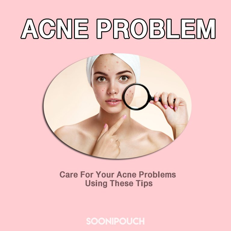 Care For Your Acne Problems Using These Tips